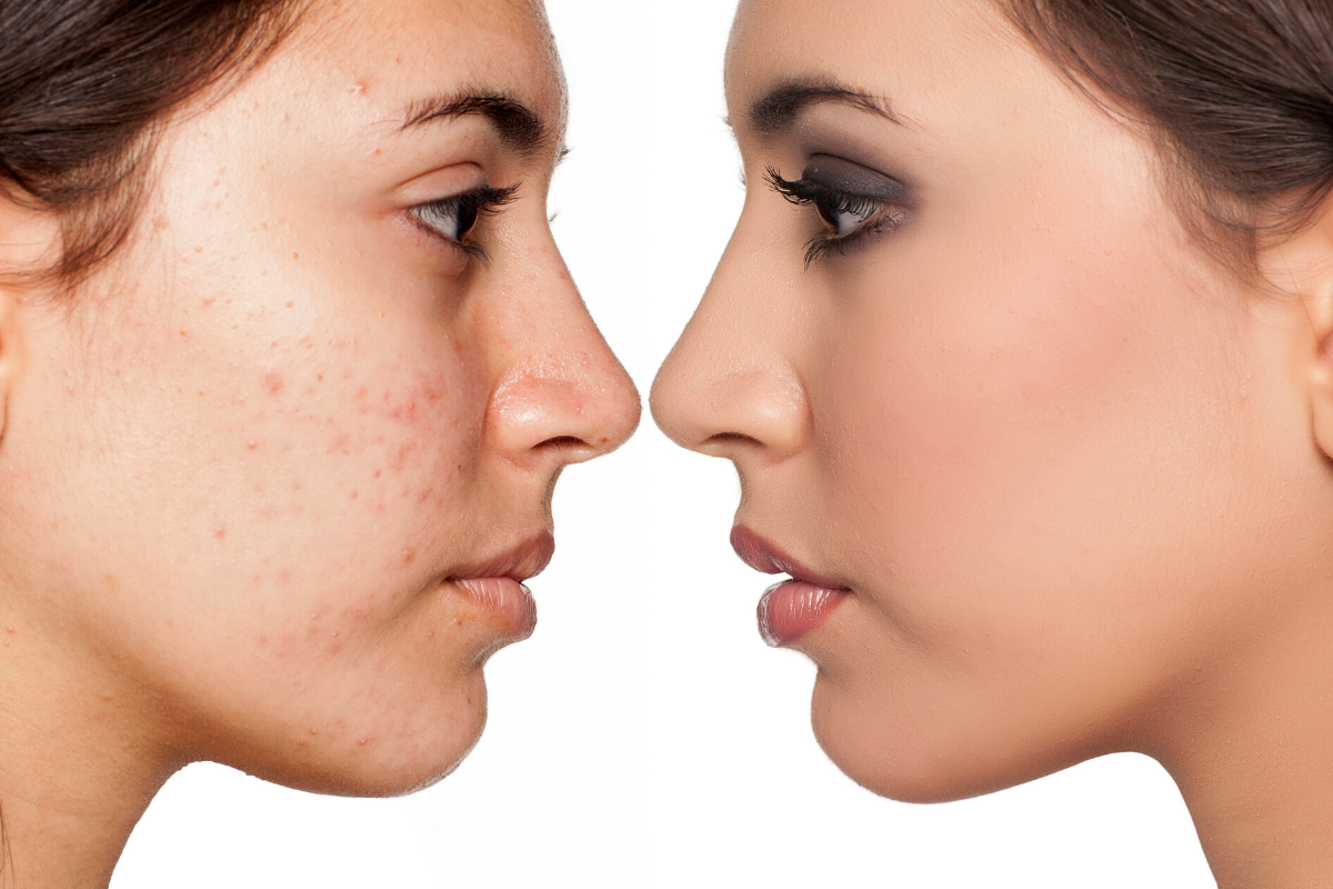 get rid of acne, How to get rid of acne, causes, symptoms, solutions, treatment, Dermiq Clinic