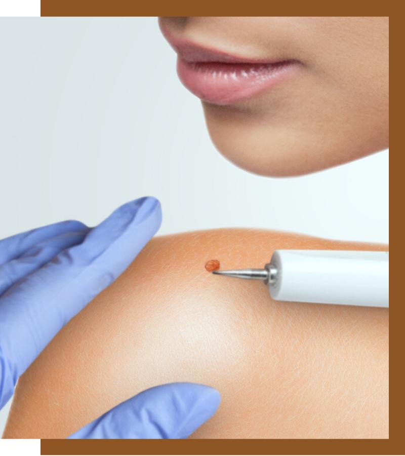 , Warts and Moles, Dermiq Clinic