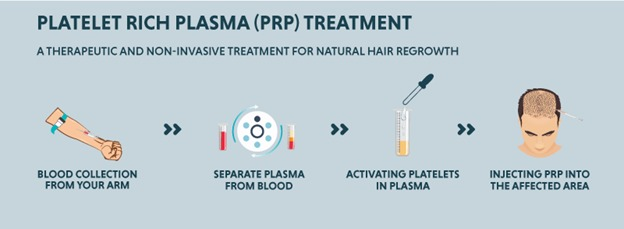 , How much does hair loss treatment cost in Hyderabad, Dermiq Clinic