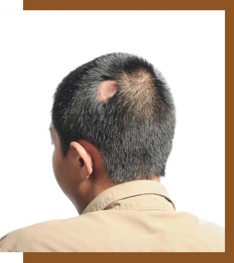 , Scarring Alopecia: Causes, Types, Symptoms & Treatments, Dermiq Clinic