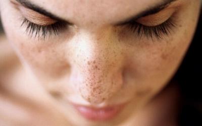 Pigmentation Treatment / Dark Spots and Tan removal